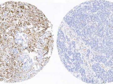 primeros indicadores de pronóstico para el cáncer de mama más agresivo
