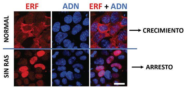 En ausencia de RAS, las células no crecen, no diferencian a otros tipos celulares y no son capaces de formar tumores