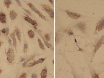 Mielofibrosis