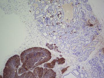 Mice mammary tissue FASN, CNIO