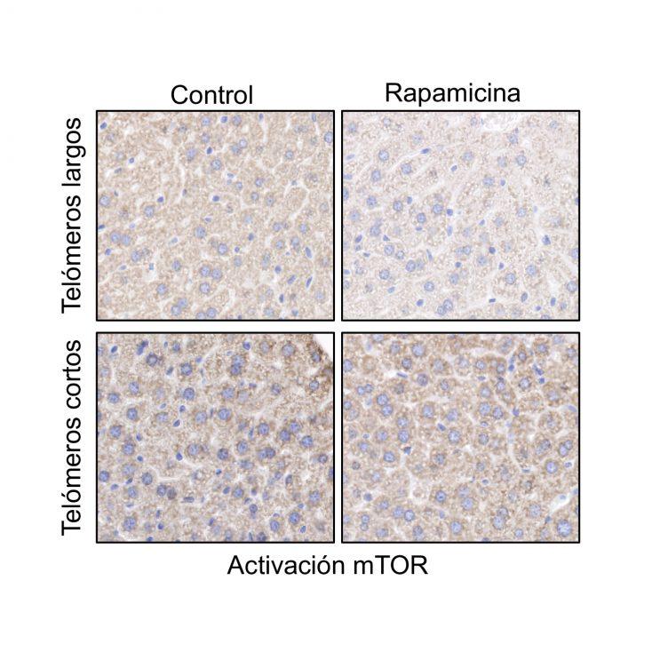Actividad de mTOR en muestras de hígado de ratones