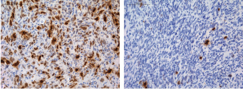Células de glioma (en azul) bajo tratamiento con temozolomida, con daño en el ADN marcado en color marrón. Cuando el locus de MGMT está intacto, su expresión se silencia y la temozolomida promueve el daño del ADN en todas las células tumorales (izquierda); Cuando se reorganiza el locus de MGMT, las células de glioma sobreexpresan MGMT, pueden reparar el daño y seguir creciendo (derecha). <b>/CNIO</b>