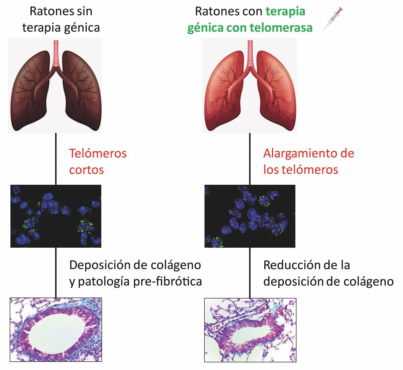 Desarrollo de los estadios iniciales de fibrosis pulmonar asociada al envejecimiento en ratones sin tratar (izqda.), que se previene en ratones tratados con la terapia génica en telomerasa (dcha.). <b>/CNIO</b>