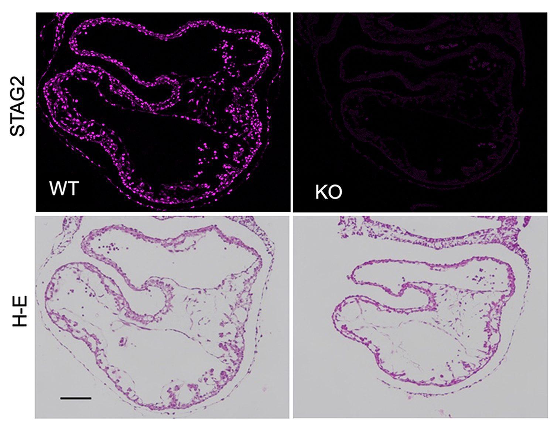 Secciones transversales de embriones murinos normales (WT) o sin STAG2 (KO) a día 9,5 de gestación teñidas con anticuerpos contra STAG2 (arriba) o hematoxilina-eosina (H-E, abajo) muestran el menor tamaño y una morfología anómala del corazón en ausencia de la cohesina STAG2. <b>/CNIO</b>