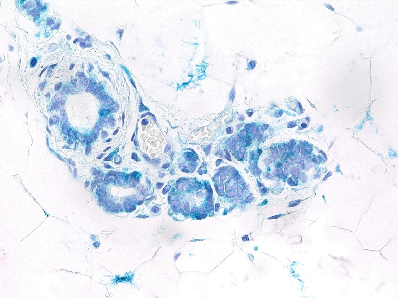 Células epiteliales senescentes (cian) en la glándula mamaria de un ratón con altos niveles de expresión de Rank. La senescencia inducida por Rank es esencial para la expansión de células madre y, aunque inicialmente se traduce en un retraso en el crecimiento tumoral, finalmente promueve la progresión del tumor y la metástasis. /CNIO